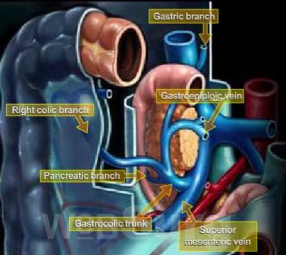 El tronco gastrocólico de Henle: la importancia de conocerlo bien ...