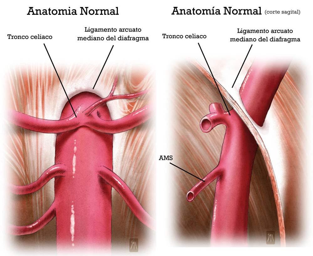Conoces el síndrome del Ligamento Arcuato Mediano? - Dr. César ...